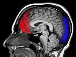 Florida Traumatic Brain Injury Attorneys